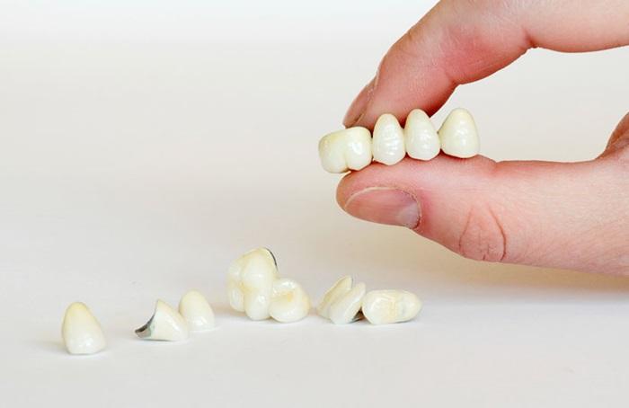 Bọc răng sứ implant - Giải pháp khôi phục răng đã mất tối ưu nhất 2