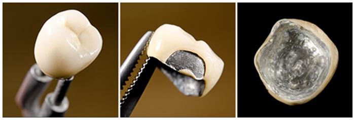 Răng giả kim loại - Lựa chọn tiết kiệm mà bền chắc, hiệu quả 2