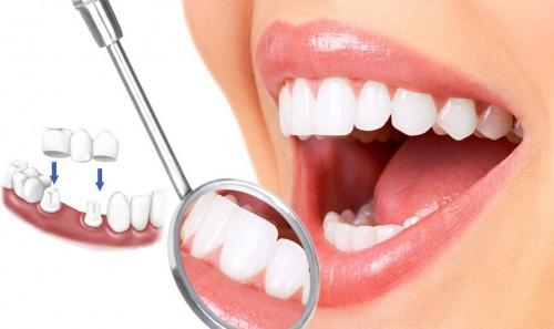 Bọc mão răng sứ là gì? Trường hợp nào nên bọc mão răng sứ?