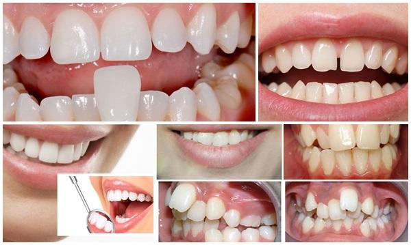 Bọc sứ răng cửa 1