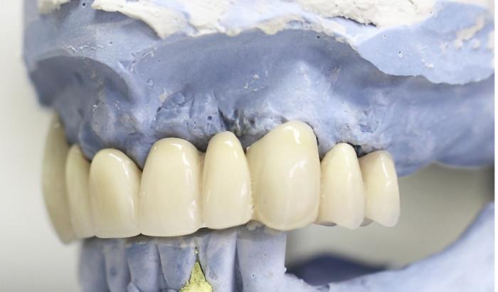 Bọc sứ răng khểnh - Cho nụ cười duyên, cuốn hút ánh nhìn 1