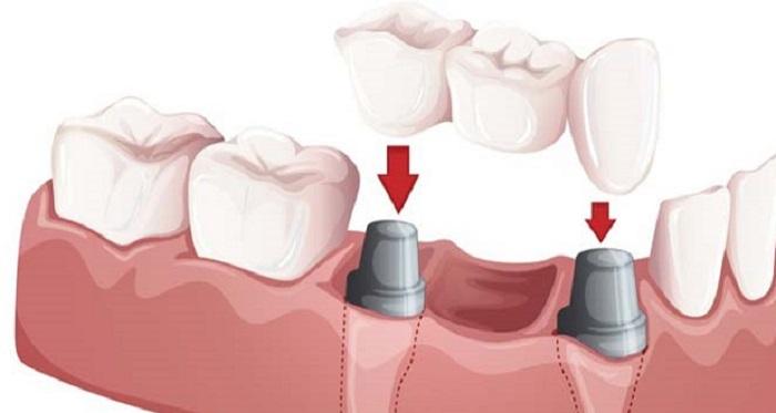 giá cấy răng implant bao nhiêu tiền