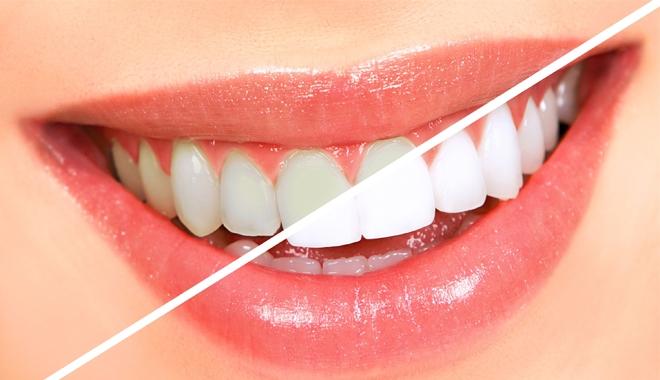 tẩy răng laser 2