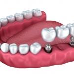 Làm thế nào để chọn được địa chỉ trồng răng sứ uy tín tại Đồng Nai?