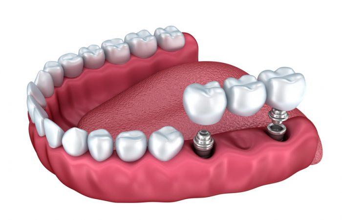 Làm răng giả an toàn bằng những kỹ thuật tiên tiến nhất 4