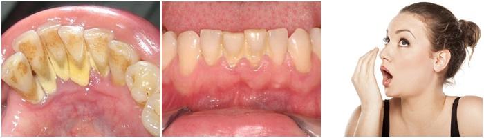 cạo vôi răng 2