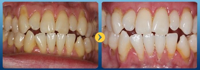 hở chân răng - 1