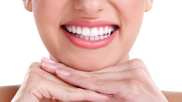 Tẩy trắng răng có hại gì không? 1