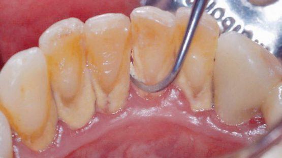 Cạo vôi răng – Biện pháp đơn giản để bảo vệ sức khỏe răng miệng