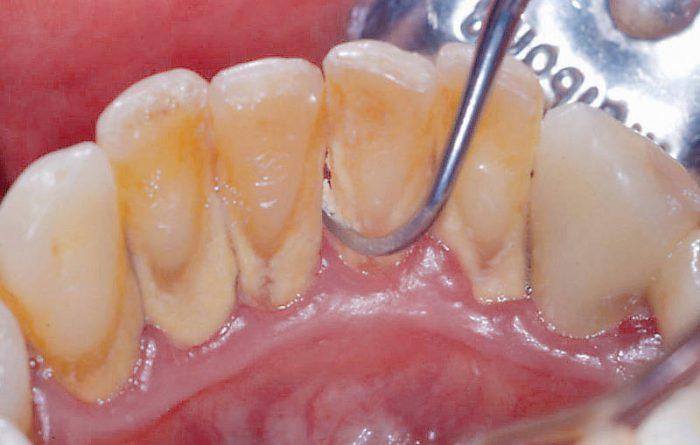 Cạo vôi răng - Biện pháp đơn giản để bảo vệ sức khỏe răng miệng 1