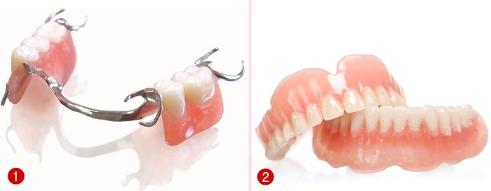 Phương pháp trồng răng giả nào tốt nhất hiện nay? 2