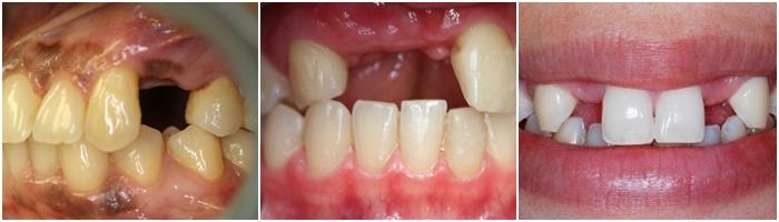 Cầu răng sứ - Phương pháp thay thế răng răng mất tiết kiệm, nhanh chóng 2