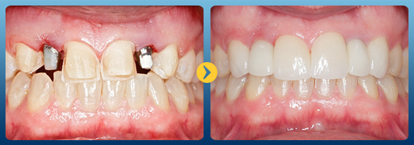 Trồng răng implant -21