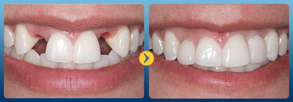 Cấy răng giả implant -13