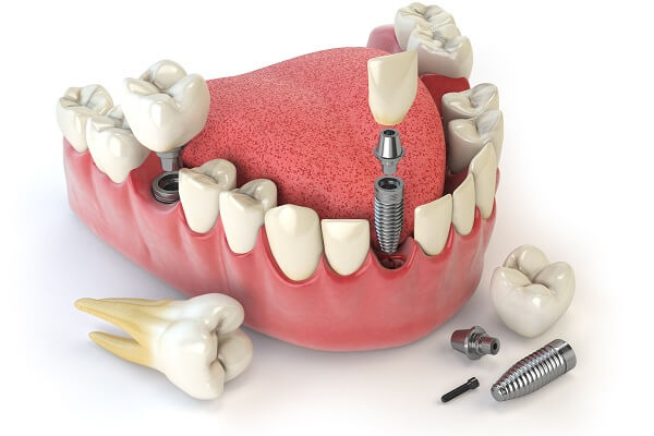 Image result for răng sứ trên implant