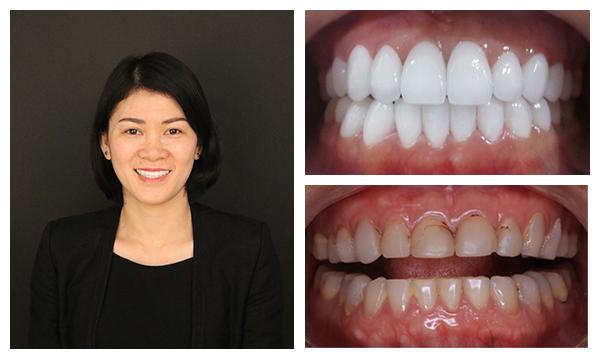 Bọc sứ răng cửa 3