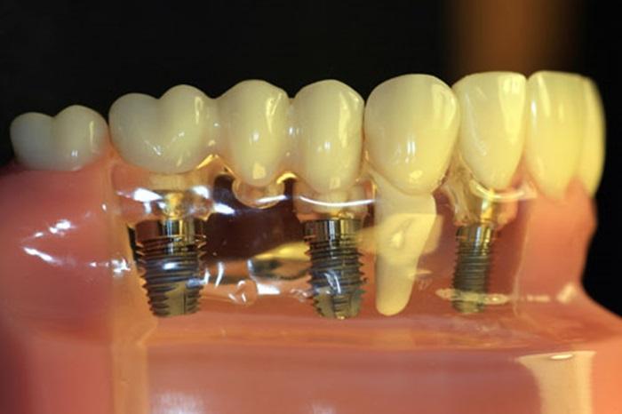 Cấy răng implant - Tại sao lại được nhiều người lựa chọn? 1