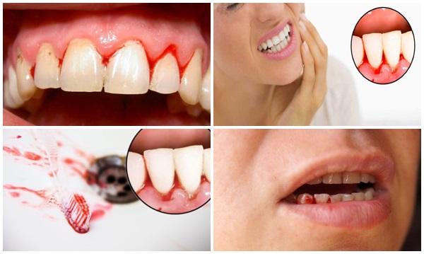 răng sâu chảy máu - 1