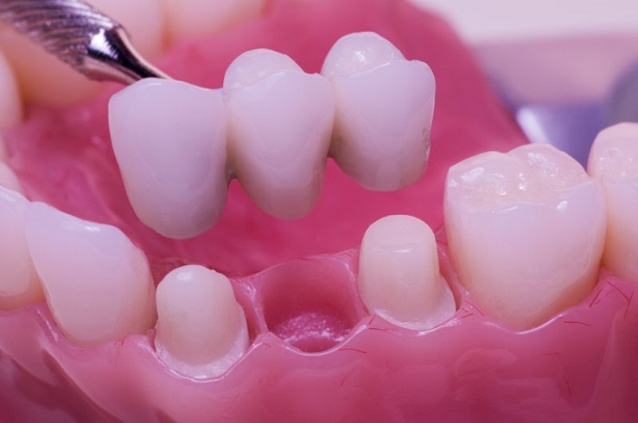 Giá làm răng giả bao nhiêu tiền? | Thông tin chi tiết 3