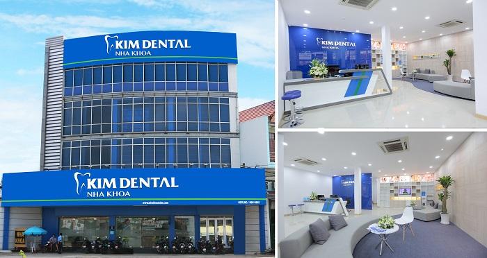Địa chỉ trồng răng implant tại Hà Nội – Uy tín và chất lượng cao 2
