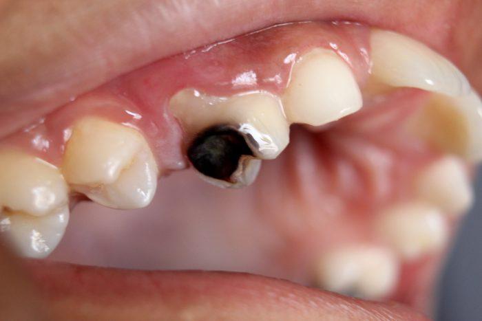 Chữa sâu răng hàm trên ở đâu an toàn và hiệu quả nhất hiện nay? 1