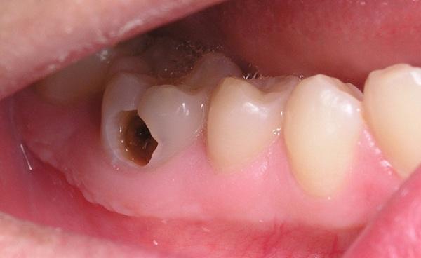 răng sâu ảnh hưởng đến ăn nhai