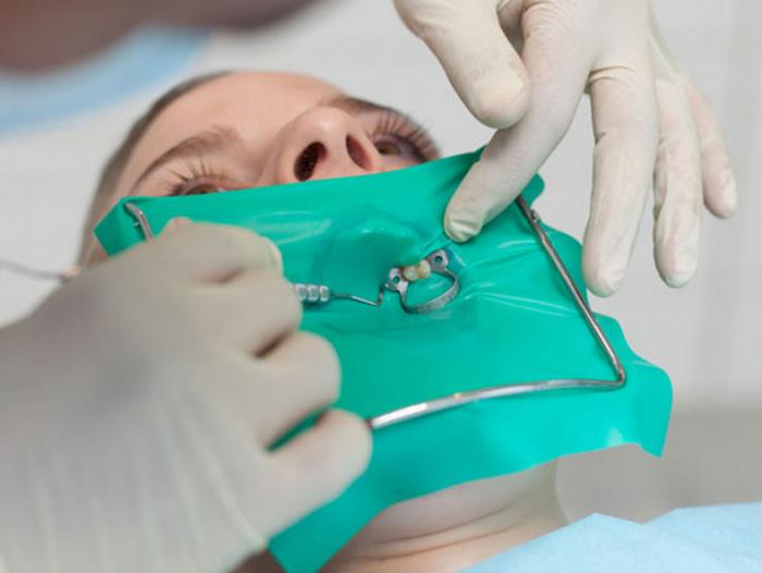 Răng bị viêm tủy - Nguyên nhân và cách điều trị an toàn, hiệu quả 4