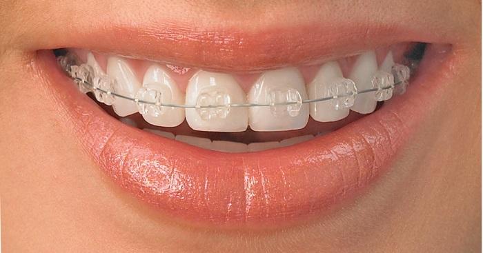niềng răng hàm dưới - 3