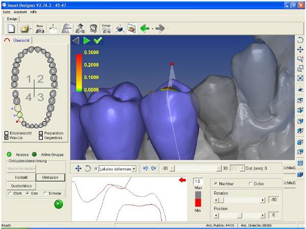 Phần mềm CAD/CAM mô phỏng hiệu quả sau khi niềng răng
