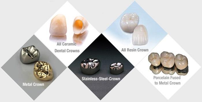 Địa chỉ bọc răng sứ nào uy tín đáng lựa chọn nhất hiện nay? 2