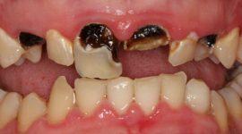 Răng sâu nên điều trị bằng cách nào tốt nhất?