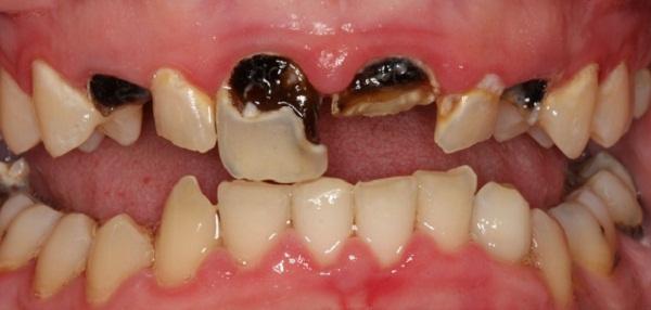 Răng sâu nên nhổ bỏ khi nào thì hợp lý?
