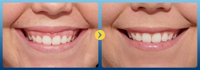 hở lợi niềng răng - 2