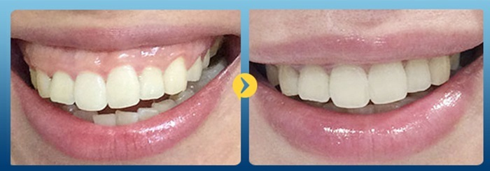 hở lợi niềng răng - 1
