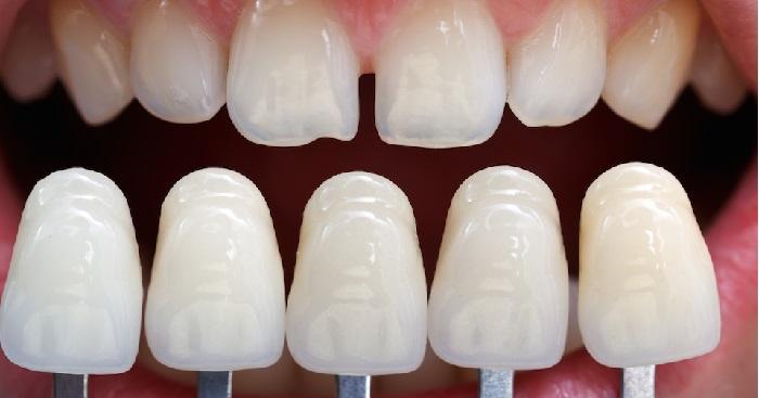 Đắp răng giả bằng kỹ thuật nha khoa hiện đại, thẩm mỹ cao 2