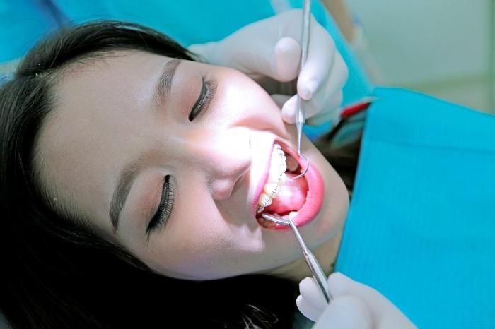 Niềng 1 răng mọc lệch có được không? Có hiệu quả không? 2