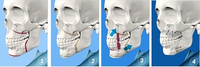 Chỉnh hàm hô bằng phẫu thuật có thực sự đảm bảo an toàn không? 2
