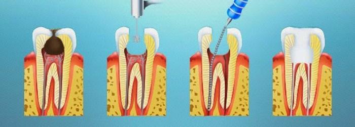 Diệt tủy răng - Vì sao cần thực hiện khi răng bị viêm tủy? 1