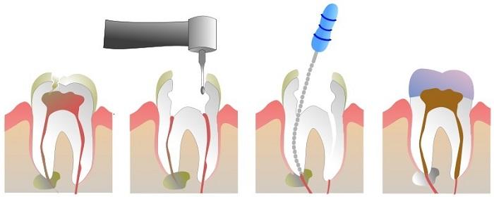 Chữa tủy răng - Giải pháp bảo tồn răng hiệu quả tối ưu 2