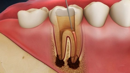 Điều trị tủy răng và những thông tin hữu ích bạn cần biết