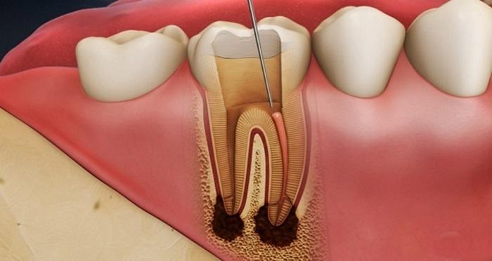 Răng bị viêm tủy - Nguyên nhân và cách điều trị an toàn, hiệu quả 1
