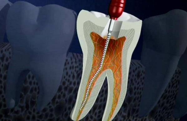 rút tủy răng 5