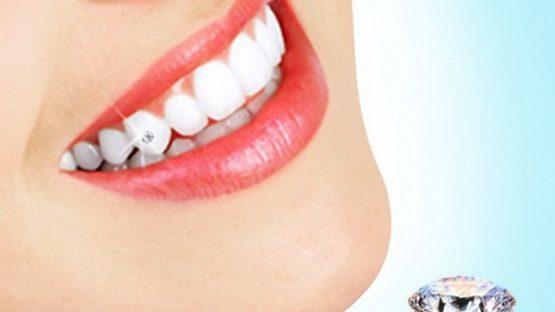 Làm răng đính đá gì? Ai phù hợp để làm răng đính đá?