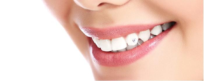 Làm răng đính đá gì? Ai phù hợp để làm răng đính đá? 2
