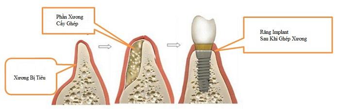 Ghép xương trồng răng implant - Tất tất những thông tin bạn cần biết 1