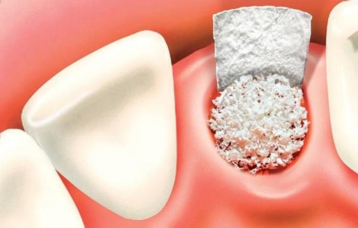 Ghép xương trồng răng implant - Tất tất những thông tin bạn cần biết 2