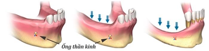 Ghép xương trồng răng implant - Tất tất những thông tin bạn cần biết 3