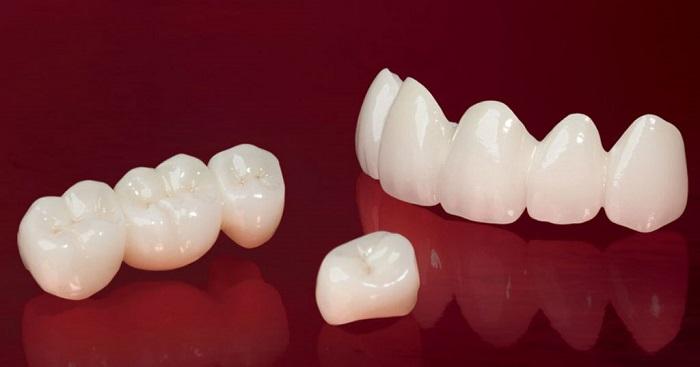 Răng giả cao cấp Zirconia có ưu điểm gì nổi bật? 1