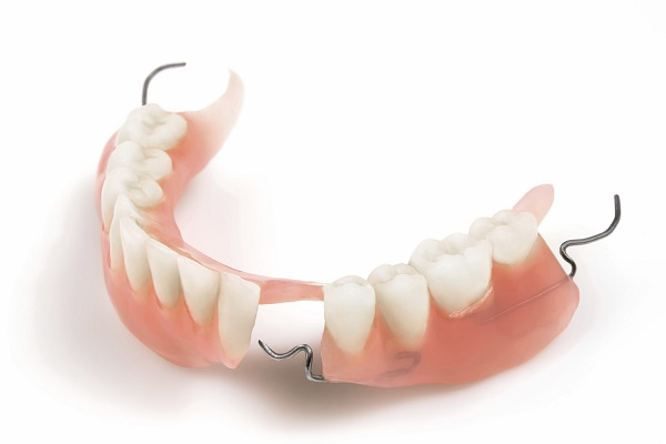 Trồng răng giả vĩnh viễn -4