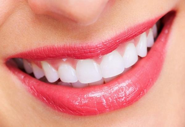 làm răng thẩm mỹ - 1